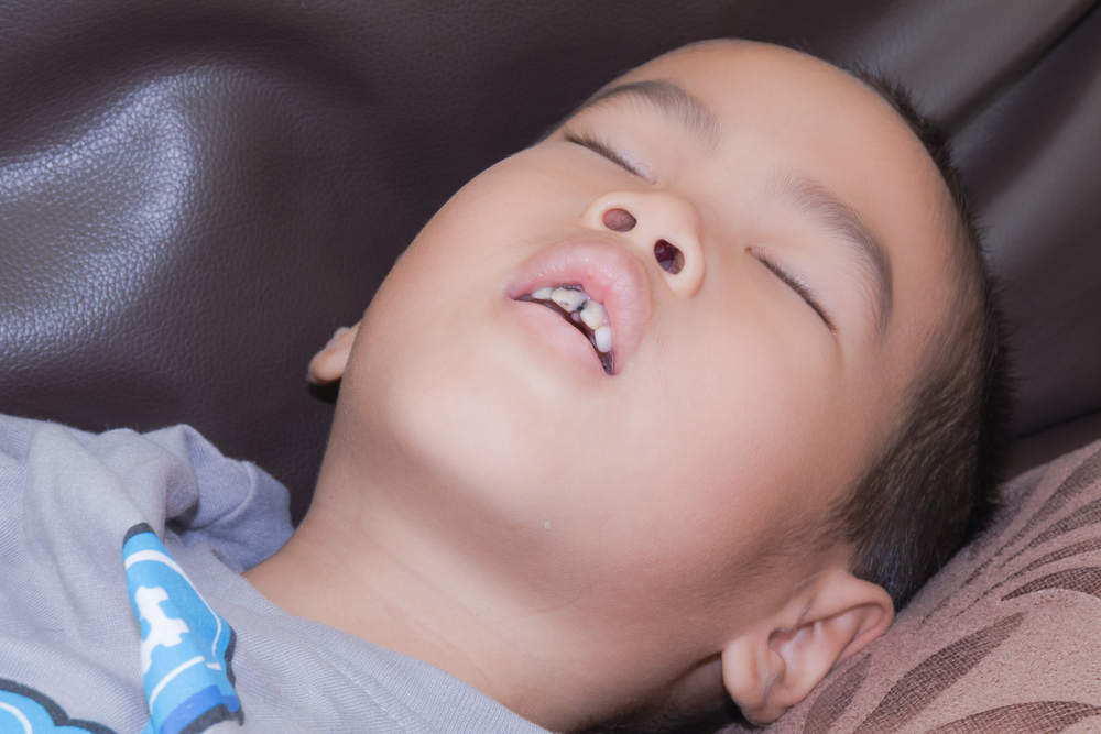 Mouth breathing epidemic in children and it's impact - Australian